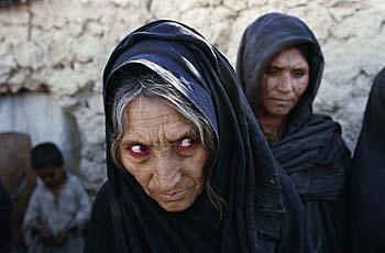 Une refugiée Afghane à Quetta au Pakistan. Fevrier 2001.
